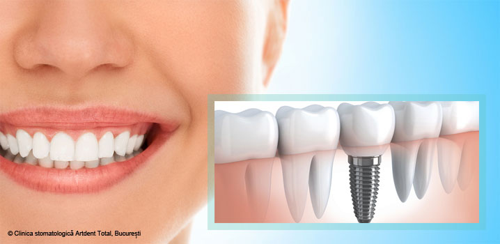 avantajele-implantului-dentar