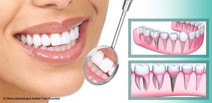 ce-se-intampla-dupa-procedura-de-implant-dentar-si-cum-trebuie-sa-ma-ingrijesc