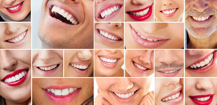 dintii-pot-fi-regenerati-cu-ajutorul-laserului