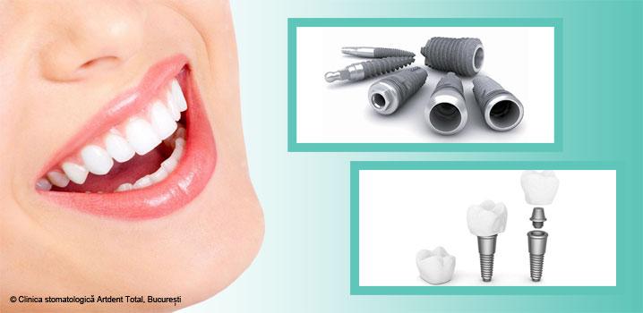 Scurtă istorie a implantului dentar