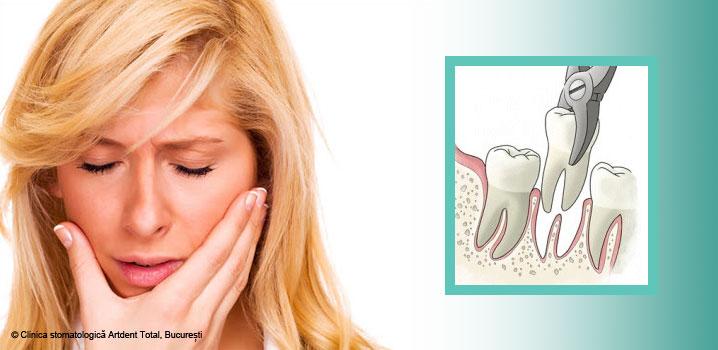 cauzele-care-pot-duce-la-extractii-dentare