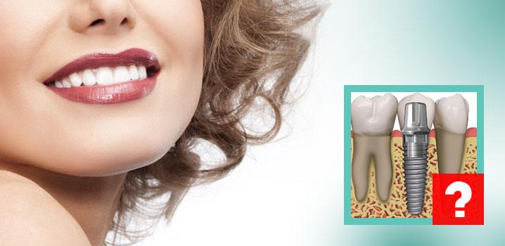 implantul-dentar-oare-imi-este-recomandat