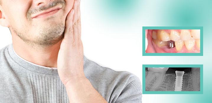 Implantul dentar – eșecul implantului dentar