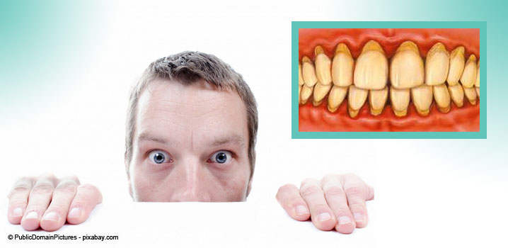 parodontita-sau-boala-parodontala
