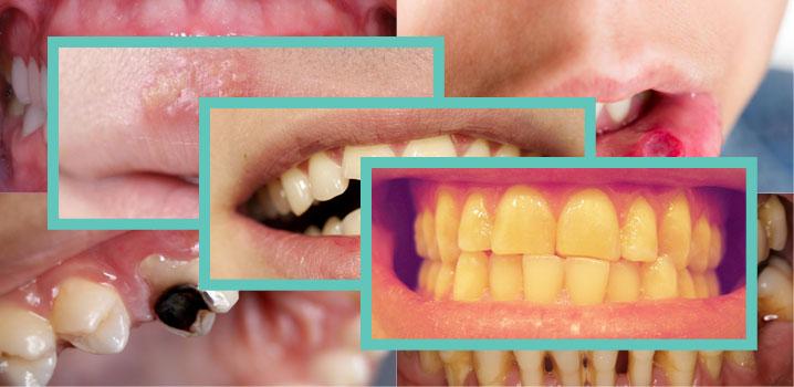 Cum arată afecțiunile stomatologice cel mai des întâlnite?