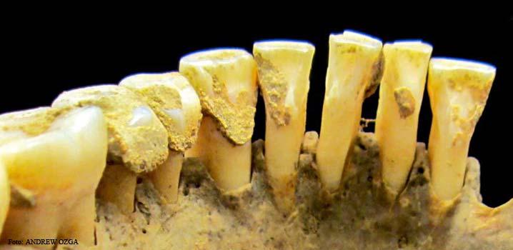 Tartrul dentar deține indicii despre lumea străveche