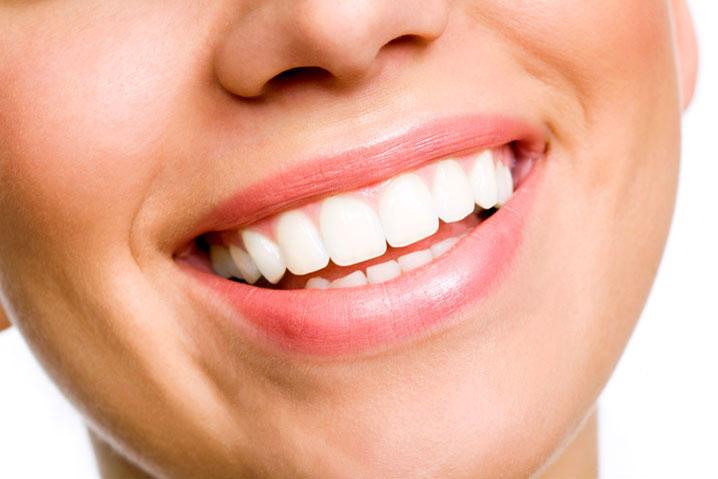 clinică stomatologică bucurești - cosmetica dentara