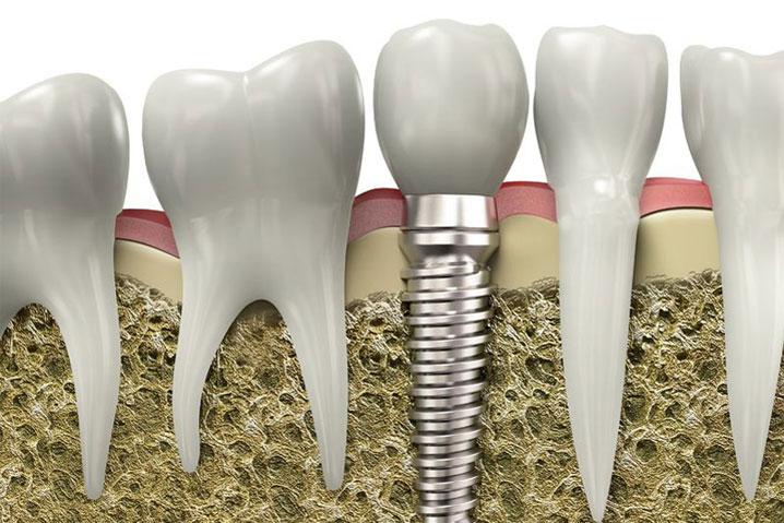clinică stomatologică bucurești - implantologie
