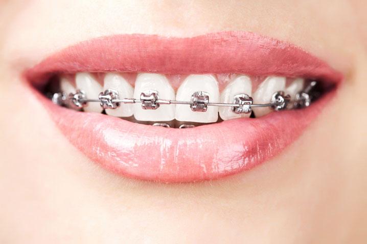 clinică stomatologică bucurești - ortodontie